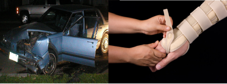 Uninsured and Underinsured Driver Policy in Personal Injury Claim