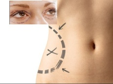 Liposuction and Eyelid Surgery as Cosmetic Surgery Claims and Compensation
