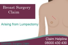 Breast Surgery Claim Arising from Lumpectomy: Cosmetic Surgery Claim
