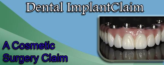 Dental Implant Claim: A Cosmetic Surgery Claim